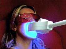 blanchiment ds dents annemasse thonon
